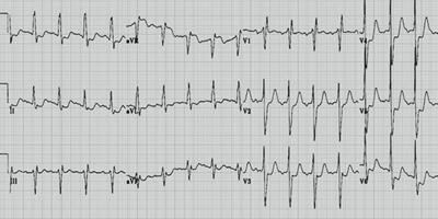 Médecine cardio-vasculaire - Référentiels des Collèges